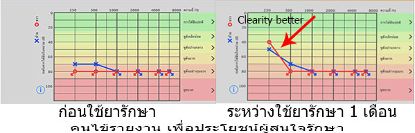 This image has an empty alt attribute; its file name is ผลกราฟการรักษา.jpg
